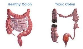 Colon Cleansing Recipes